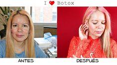 Botox Antes Después http://www.eldiariodecandy.com/mi-experiencia-con-el-botox
