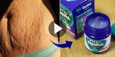 Belly Fat and Cellulite, Cure Stretch Marks and Have Firmer Skin