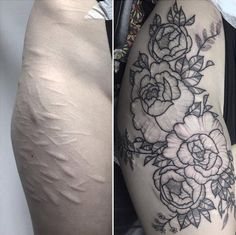 Floral scar-concealing thigh tattoo by Poppy Seger