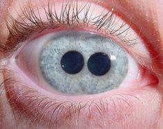 The Pupula duplex is a medical oddity that is characterized by having two irises/ pupils in each eyeball.  Visit www.factsnmyths.com for more interesting stuff.