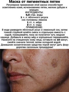 Medical Anatomy, Foot Reflexology, Muscle Anatomy, Sports Massage, Facial Exercises, Lymphatic System, Acne Skin, Skin Tightening, Beauty Recipe