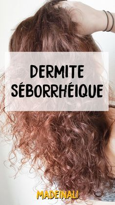 Caring naturally seborrheic dermatitis of the scalp - madeinali Beauty Tips For Hair, Best Beauty Tips, Beauty Hacks, Hair Tips, Natural Health Tips, Natural Skin Care, Natural Hair, Seborrhoische Dermatitis, Aloe Vera