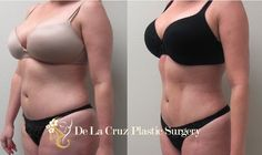 Liposuction houston can supply people alike with broader and much better body proportions while still taking good care of pesky regions which are resistant to exercise and diet