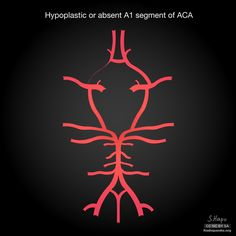 Common variants of the circle of Willis: diagrams   Radiology Case   Radiopaedia.org