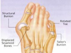 Here Is The Best And Most Effective Way To Easily Remove Bunions. health remedies remedy good to know viral viral right now viral posts How To Remove Bunions, Get Rid Of Bunions, Bunion Remedies, Natural Treatments, Natural Cures, Health Remedies, Home Remedies, Good To Know, Health
