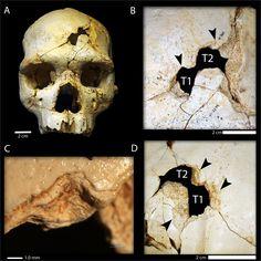 Evidências de um assassinato de 430 mil anos atrás são encontradas