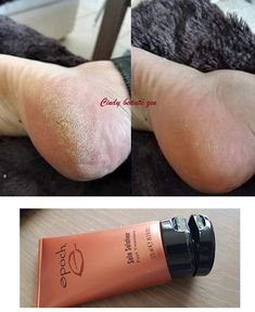This deep-penetrating foot cream is ideal for cracked heels, rough, chronically dry feet and callouses. Epoch Sole Solution, Galvanic Spa, Foundation, Nu Skin, Foot Cream, Feet Care, Mists, Social Media, Skin Care