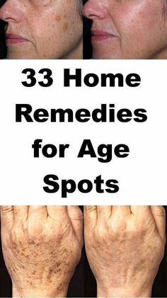 The best ways to Do away with Warts Naturally #WartsOnHands #HowToRemoveWartsOnFace #HomeRemediesForWartsOnFinger #SkinWartsPenile #SkinBumpsWarts Sun Spots On Skin, Black Spots On Face, Brown Spots On Hands, Age Spots On Face, Spots On Legs, Dark Spots, Warts On Hands, Warts On Face, How Do You Remove
