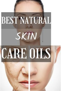 Natural skin care products for oily acne prone skin What Is Collagen, Best Natural Skin Care, Acne Prone Skin, How To Look Pretty, Products, Beauty Products, Gadget
