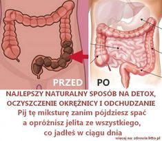 Soda – najlepszy i najtańszy lek – 13 rewelacyjnych i prostych przepisów. 11 i 12 super Healthy Eating Guidelines, Healthy Tips, Healthy Foods, Fitness Tips, Health Fitness, Natural Teething Remedies, Natural Remedies, Healthy Detox, Wellness Tips