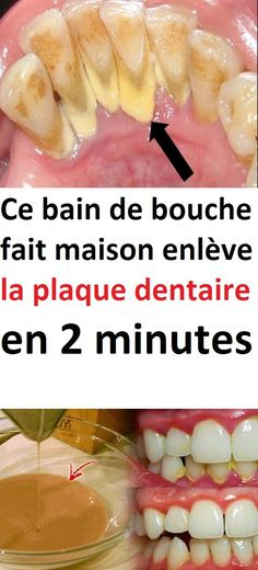 Ce bain de bouche fait maison enlève la plaque dentaire en 2 minutes Perfume, Natural Life, Home Remedies, Healthy Life, Plaque, Health Fitness, Nutrition, Treats, Homemade