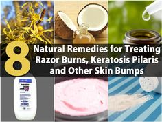 Bumps, red spots and dry skin are skin conditions that women deal with all the time. Whether you notice tiny red bumps after shaving or you have seriously dry skin that seems to worsen through the winter months. We have found a great collection of products and DIY remedies that will help you to...