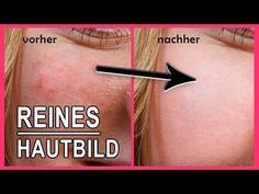 Poren verkleinern verfeinern reinigen | Reines glattes Hautbild Peeling aus natürlichen Hausmittel Ihr habt mit großen Poren zu kämpfen und wünscht euch ein reines Hautbild? Ich zeige euch ein Peeling aus natürlichen Hausmitteln, was euer Hautbild glatter und ebenmäßiger erscheinen lässt.