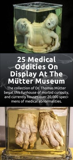 The Mütter Museum in Philadelphia is a tribute to the surgeon Thomas Dent Mütter and his unmatched collection of anatomical anomalies. Boudoir Photography, Couple Photography, Photography Tips, Diwali Lights, Lace Hairpiece, Red Nail Art, Awkward Family Photos, Family Photo Sessions, Cute Couples Goals