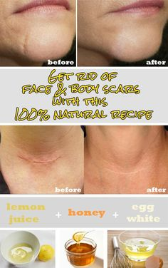 Get rid of face and body scars with this 100% natural recipe - WomenZoom.com
