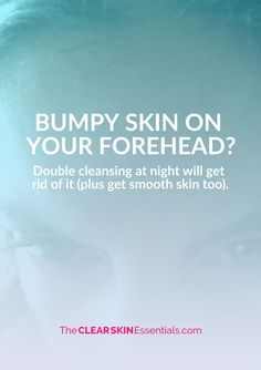 How To Get Rid Of Bumpy Skin On Your Forehead - www.TheClearSkinEssentials.com