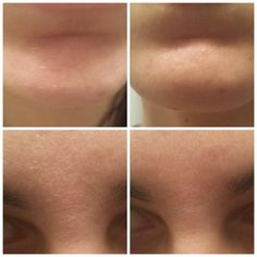 During winter, many people complain that they have dry and flaky skin. It is often due to the cold weather, but this skin problem can also be caused by aging, Flaky Skin On Face, Dry Flaky Skin, Dry Skin, Epoch Mud Mask, Moisturiser, Skin Problems, Remedies, Skin Care, Vintage