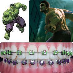 #Marvel mondays #hulk #thehulk #theincrediblehulk #orthodontics #orthodontist #braces #brackets  #ortodoncia #ortodontia #ortodontista #ortodoncista #marvelcomics #marveluniverse #ipad #iphone #android #app #BraceMate #cosplay #avengers