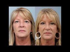 See this real patients testimonial on having an Upper Eyelid Sliver #Blepharoplasty by Dr. Edwin Williams. #eyeliftsurgery #heavyeyelids #DrEdwinWilliams