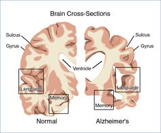 """Normal brain v Alzheimer's. """"The brain tissue of a patient with Alzheimer's disease typically shows cortical atrophy, the hallmark features being neurofibrillary tangles, neuritic plaques, and granulovascular degeneration. Dementia Symptoms, Disease Symptoms, Alzheimer's And Dementia, Alzheimer's Symptoms, Dementia Awareness, Speech Language Pathology, Speech And Language, Alzheimers, Alzheimer's Brain"""