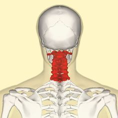 At some point in life, most of us will develop back and neck pain. The pain may be related to an accident, sports injury, or even due to health conditions such as scoliosis. However, the leading cause of back and lower back pain can be related to poor pos Sciatica Relief, Sciatica Pain, Severe Back Pain, Scoliosis Exercises, Yoga Exercises, Fitness Exercises, Lower Back Exercises, Back Pain Relief, Neck Pain