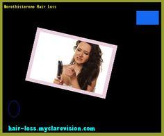 Norethisterone Hair Loss 232359 - Hair Loss Cure!
