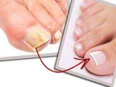 Kend be ezzel a fahéjas dologgal a gombás lábkörmöd és egy hét múlva megoldódik a problémád!