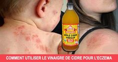 How To Use Apple Cider Vinegar To Treat Eczema. Apple cider vinegar has been used for centuries as a home remedy for various conditions. One of it's main uses is Use Apple Cider Vinegar To Treat Eczema. Apple Cider Vinegar Eczema, Apple Cider Vinegar Remedies, Herbal Remedies, Natural Remedies, Home Remedies For Eczema, Natural Treatments, Health Tips, Health Products, Apple Cider Vinegar