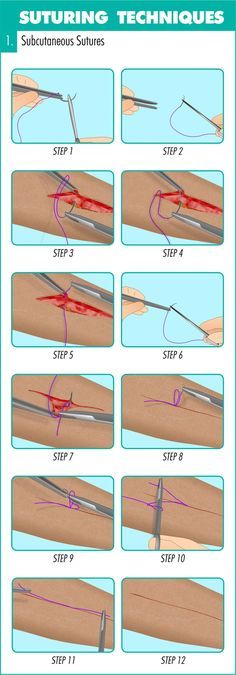 This (infographic) guide runs you through an introduction to suturing before taking you step-by-step through how & when to place 11 suturing techniques.
