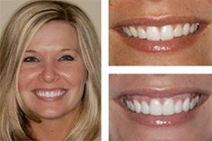 If your teeth are missing, then dental implants are the best long term solution for your missing teeth. We provide completely natural look using advanced technology of Dental Implants in North Carolina. Dental Surgery, Dental Implants, Dental Hygienist, Cosmetic Dentistry Procedures, Teeth Pictures, Laser Dentistry, Veneers Teeth, Teeth Whitening Remedies, Dental Cosmetics