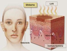 Tratamentos caseiros para acabar com o melasma