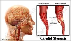 Carotid Stenosis or Stenosis of the Carotid Artery