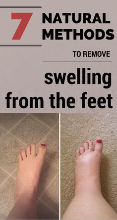 Natural Remedies For Swollen Feet 7 natural methods to remove swelling from the feet. - 7 natural methods to remove swelling from the feet. Foot Remedies, Arthritis Remedies, Health Remedies, Essential Oil For Swelling, Essential Oils, Pregnancy Swelling, Water Retention Remedies, Swollen Ankles, Natural Diuretic