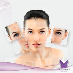 Despídete del acné, arrugas, manchas y más, con los tratamientos que Advanced Esthetic tiene para ti, conoce más en www.advancedestheti.com.co