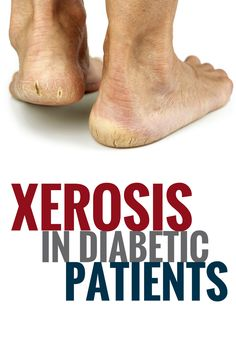 Dry Skin Alert: Foot Xerosis in Diabetic Patients. Diabetic wound management requires awareness, including knowing the signs and progression of xerosis - an abnormal dryness of skin. Foot Remedies, Dry Skin Remedies, Dry Skin Causes, Dry Skin On Feet, Blood Sugar Diet, Diabetes Information, Wound Care, Diabetes Treatment, Nursing