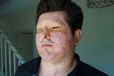 Acid Attack Survivor Recalls The Horror Of His Ordeal