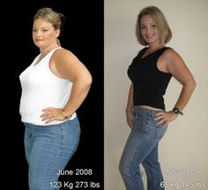 32 Best Wls Before After Images Bariatric Surgery Gastric