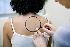 Skin cancer is afflicting more people, and research shows patients who have had non-melanoma skin cancers are at increased risk of recurrence.