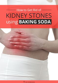 How to Get Rid of Kidney Stones using Baking Soda    Baking soda or sodium bicarbonate is one such effective natural home remedy for treating the kidney stones that dissolve and pass these stones without any pain. It helps to boost up the overall health by balancing the pH levels. Here are the reasons that explain you, how it works for removal of kidney stones.