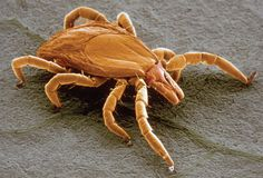A new theory about long-lasting Lyme disease symptoms suggests treatment options