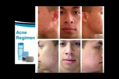 Suffered from acne, just one week using Seacret product! Www.seacretdirect.com/meenacole