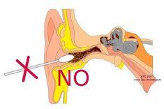 6 remedios caseros para la eliminación de la cera del oído El cerumen es una sustancia que se produce de forma natural con la función de proteger los oídos de las bacterias y otros agentes que podrían hacerles daño.