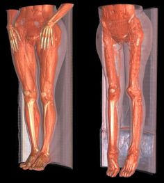 This image represents 3-D reconstruction of a healthy individual (left) and someone affected by a form of limb-girdle muscular dystrophy (right). The dramatic loss of muscle is easily seen.
