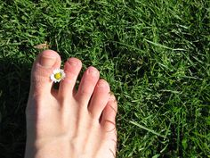 Many #warts take time to go away, especially on your feet! Ask Dr. Harvey Danciger for help if you've been having trouble with this worrying bumps! http://www.coachellavalleypodiatrist.com/blog/