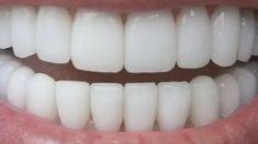 Charcoal Teeth Whitening, Natural Teeth Whitening, Whitening Kit, Aries Y Leo, Make Teeth Whiter, Banana Benefits, Eating Bananas, Dental Floss, Dental Teeth