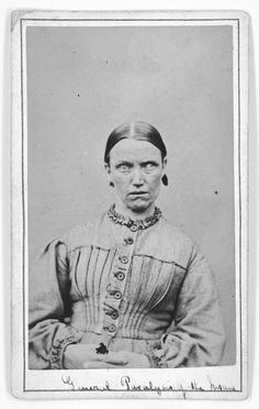 Woman suffering from general paralysis at West Riding Lunatic Asylum, York, UK, (circa 1869). Photo: James Crichton-Browne, courtesy Wellcome Library, London.