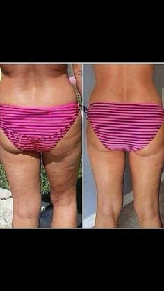Nerium firm results! Get your body ready for a bathing suit after the holiday by the simple application of ONE product! Check out ginatrevino.nerium.com