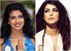 5 #Bollywood Plastic Surgeries that are Successful - #PriyankaChopra