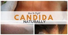 Natural home remedies for an itchy candida skin rash, including foods to eat and avoid, topical solutions and using essential oils. Starve, Kill, Rebuild!