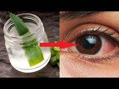 Say Goodbye To Glasses And Improve Your Eyesight With This Amazing Recipe!